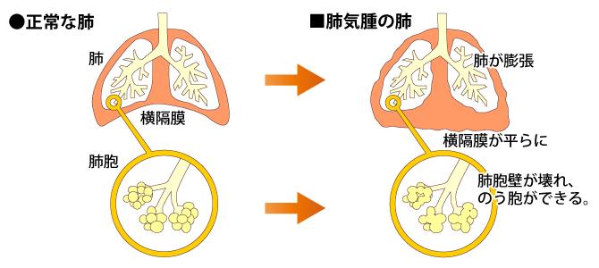 正常な肺と肺気腫の肺